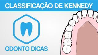 ROTEIRO KENNEDY.pdf